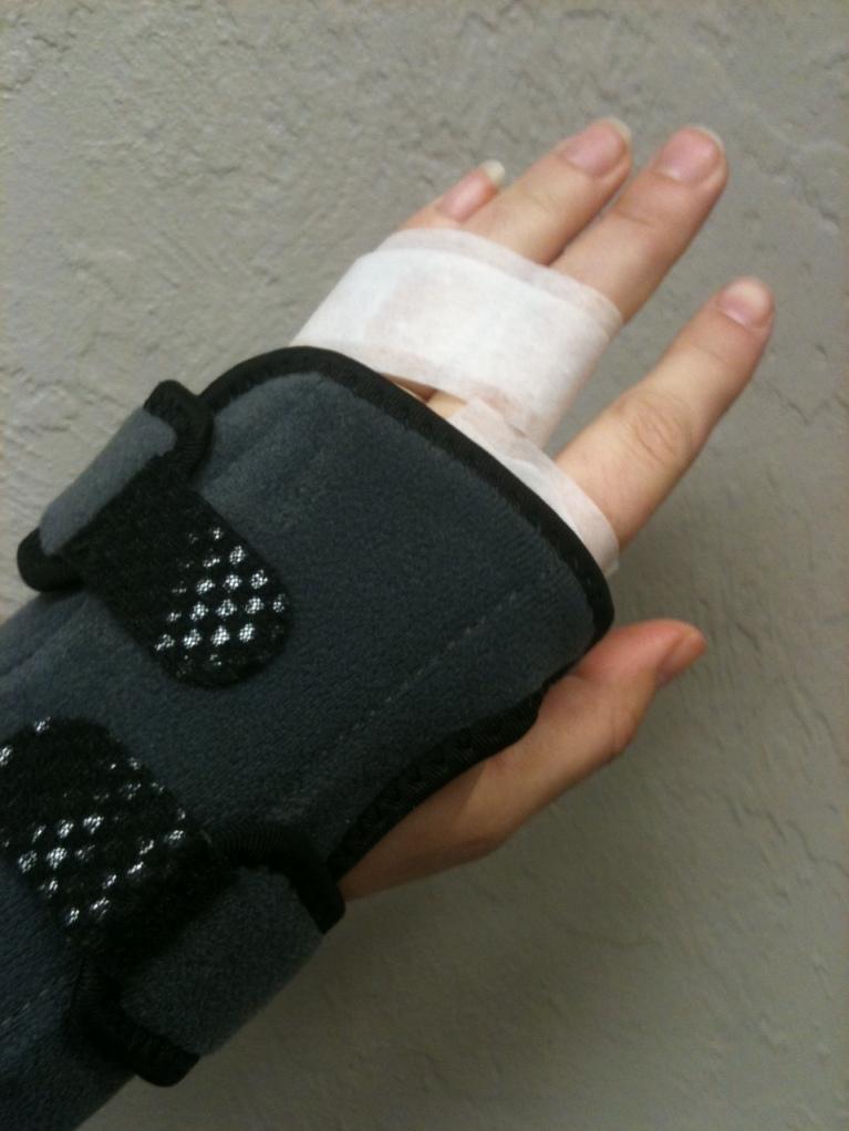 Broken knuckle brace